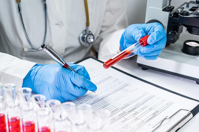 Testes para anticorpos anti-Coronavírus SARS-CoV2 (COVID-19)